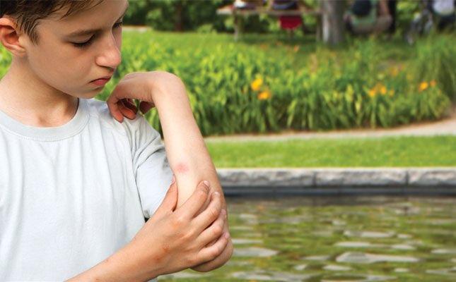 Tratamiento para picaduras de insectos menos graves