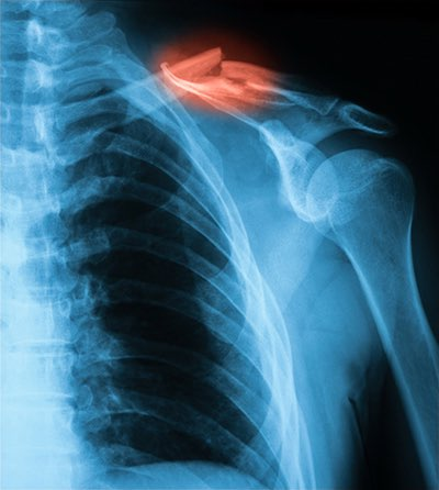los huesos y las fracturas quebrados no son típicamente peligrosos para la vida, aunque requieren asistencia médica inmediata.